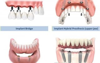 All types of implant prosthesis