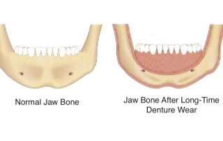 Bone loss due to denture wear