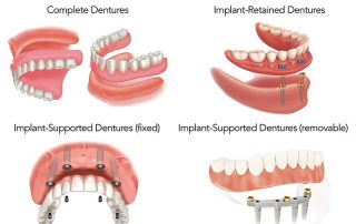 All types of dentures in panipat