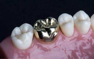 All metal Crown Panipat