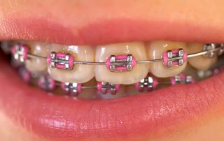 Visible metal Braces