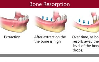 Effect of Bone resorption in missing teeth