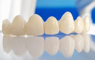 Artificial Front teeth
