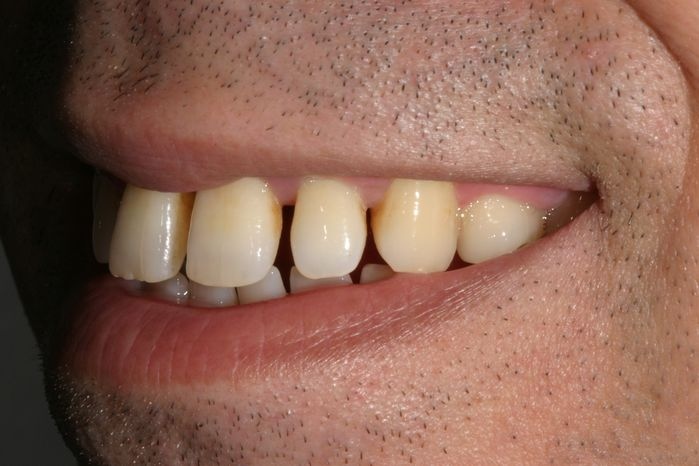 Lateral Smile View spaced teeth