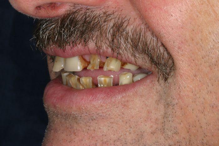 Bad shaped teeth