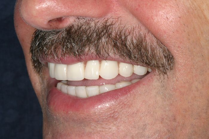 Side view of a completed smile